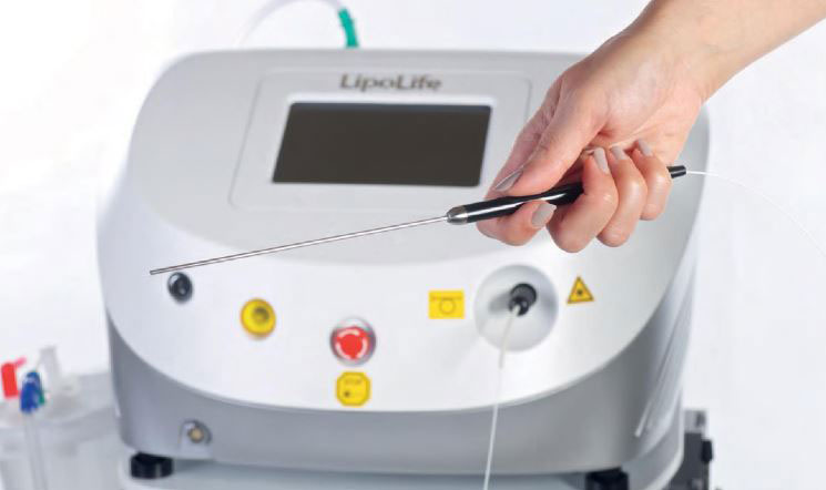 liposuccion laser tunisie