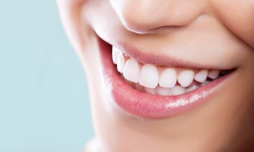 facette dentaire prix