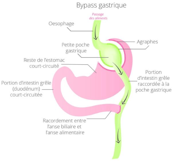 bypass gastrique tunisie
