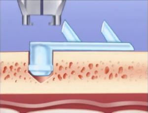 lifting frontal endoscopie tunisie pose du dispositif