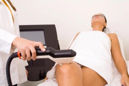 Sculpter sa silhouette par la liposuccion laser des hanches