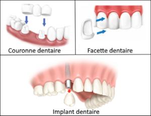 refaire ses dents en Tunisie