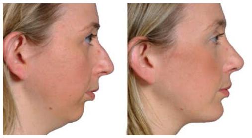 profiloplastie genioplastie et rhinoplastie